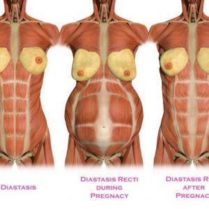 DRA - rozejście mięśnia prostego brzucha